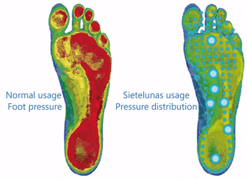 Sietelunas usage pressure distribution